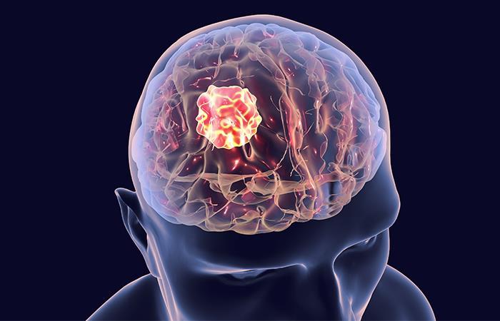 Rotavirus oncolítico incrementa muerte de células tumorales