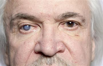 ¡Cuida tus ojos! Las cataratas pueden terminar en ceguera