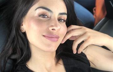 El problema de Jessica Cediel en la piel que preocupa a sus seguidores