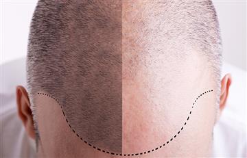 ¡Consultar al médico! La pérdida de cabello tiene solución si se trata a tiempo