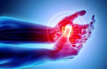 ¡Importante el diagnóstico a tiempo! Síndrome Regional Complejo podría tener cura