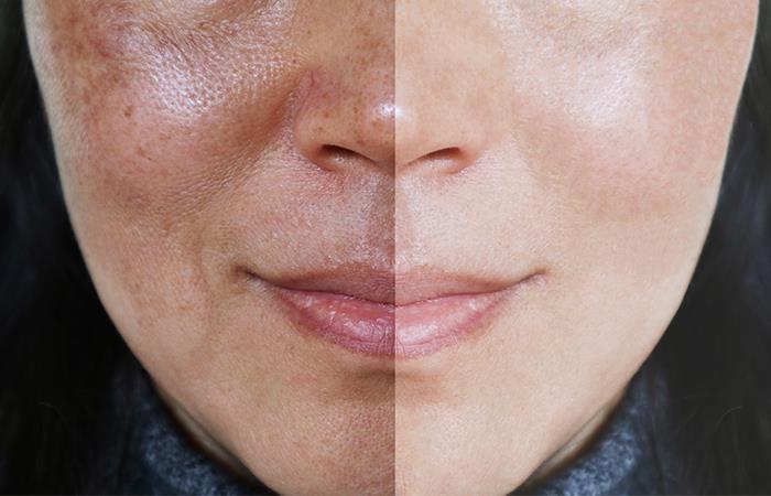 limpia manchas de la cara