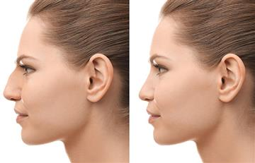 ¡Ten cuidado! Al operarte la nariz elige un cirujano plástico que sea otorrinolaringólogo