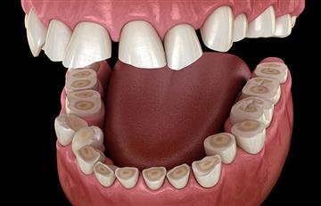 ¡Culpa del estrés laboral! El bruxismo es el hábito que puede acabar con tus dientes