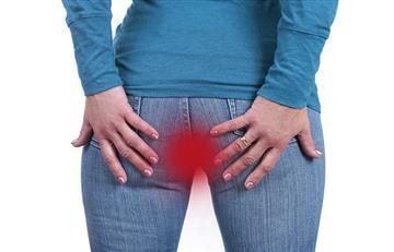 ¿Qué son las hemorroides y por qué hay que prestarles atención?