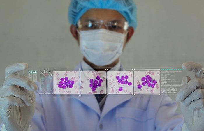 Leucemia linfocítica crónica: un invisible cáncer que corre por la sangre