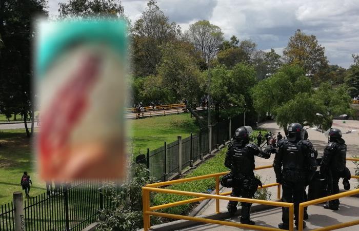 Periodista herido por el Esmad en la Universidad Nacional