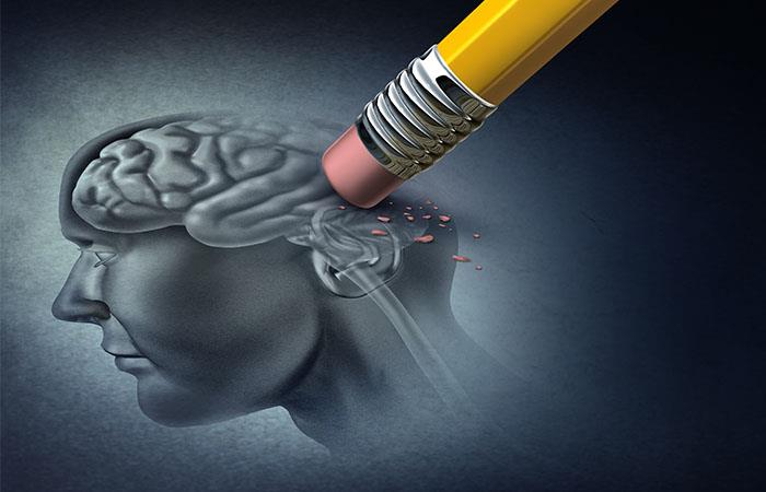 La memoria declarativa es la primera que se afecta. Foto: Shutterstock
