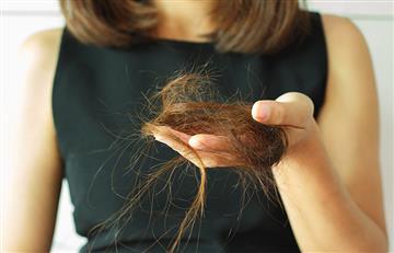 Prevenir la Alopecia ahora es posible con estos sencillos tips