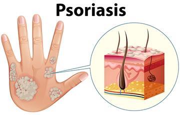 Conoce lo que es la psoriasis y cómo se puede tratar