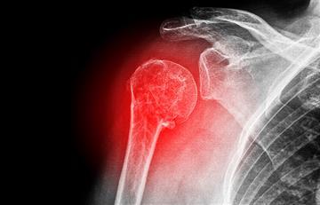 5 factores que indican riesgo de fractura en los huesos