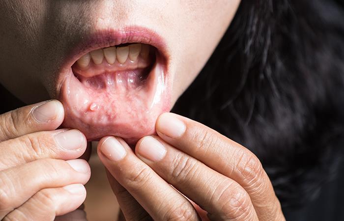 Cuál es el cáncer oral y cuáles son sus síntomas