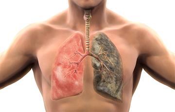 Cáncer de pulmón: el segundo más mortal en Colombia