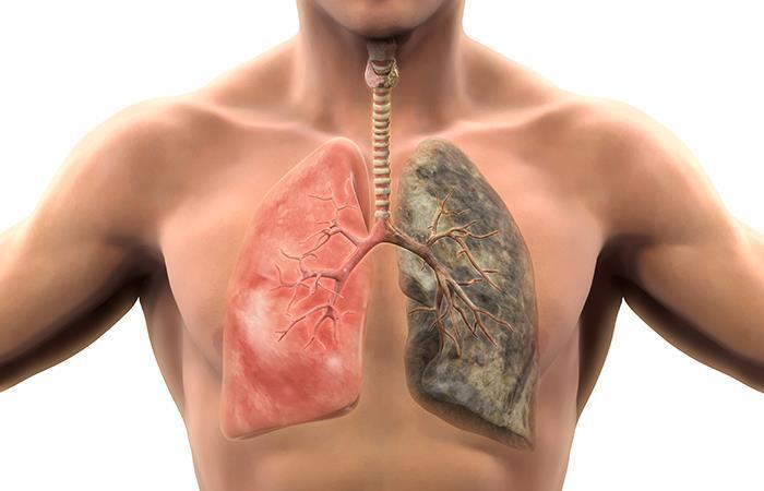 Según información, esta enfermedad cobra la vida de 5.236 colombianos cada año