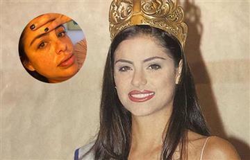 [FOTOS] Ex Señorita Colombia mostró los graves daños que le dejaron los biopolímeros en su rostro