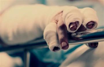 Registro de lesionados con pólvora asciende a 152 niños