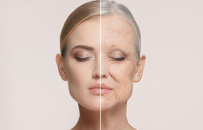 ¿Cuál es la edad de tu piel?. Foto: Shutterstock