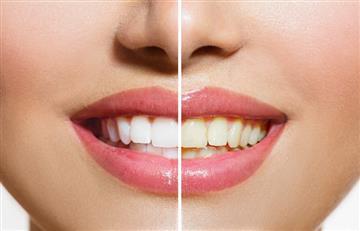 Consigue dientes blancos y relucientes con estos sencillos trucos caseros
