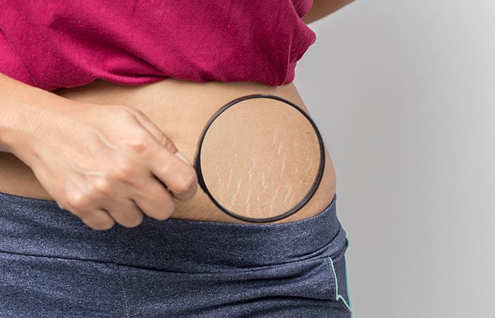 Mejora el aspecto de las estrías con estos remedios caseros
