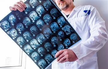 La epilepsia: Lo que debes y no debes hacer en esta enfermedad