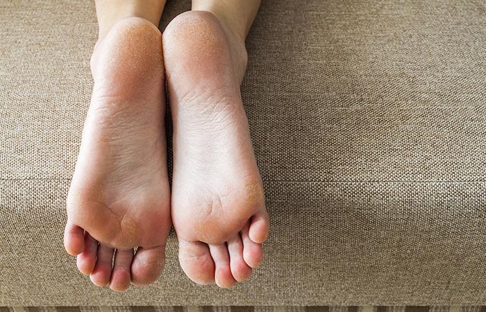 Remedios caseros eliminar callos pies
