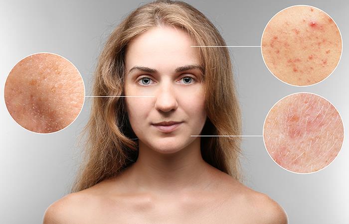 ¿Cómo cerrar los poros?. Foto: Shutterstock