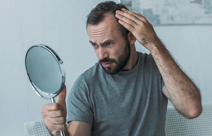 Estudio revela probable relación entre la alopecia y el coronavirus. Foto: Shutterstock
