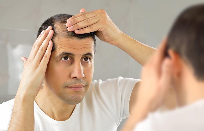 Células madre para el crecimiento del cabello en personas con calvicie. Foto: Shutterstock