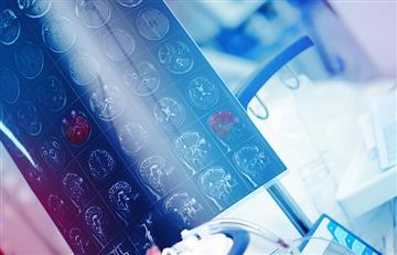 Derrames cerebrales son graves en pacientes con COVID-19