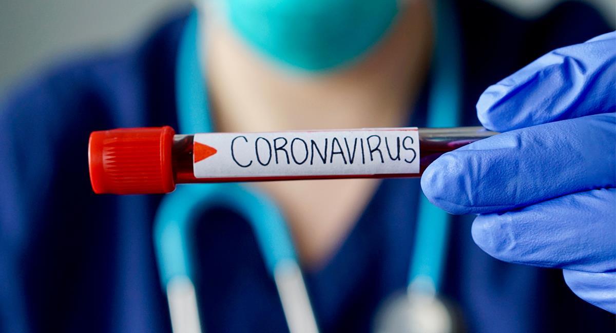 El mundo sigue buscando el tratamiento y la vacuna para el coronavirus. Foto: Shutterstock