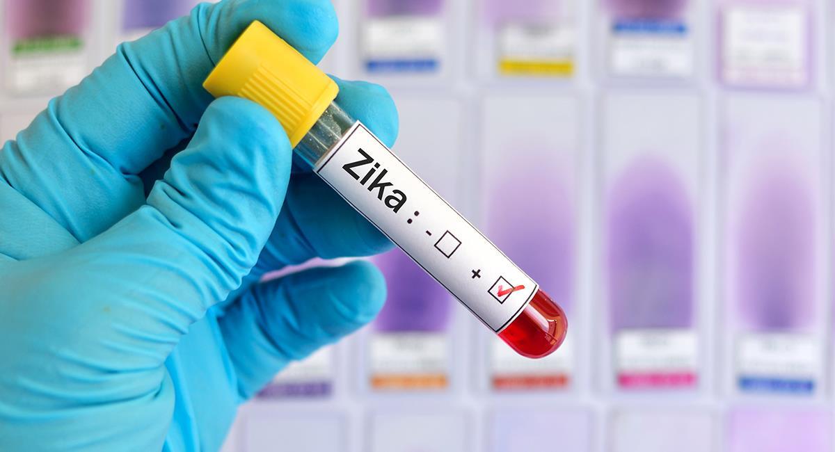 La variación africana del Zika podría afectar gravemente a Brasil. Foto: EFE