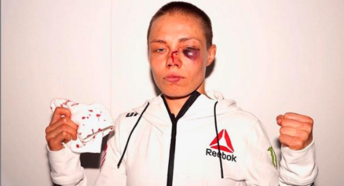Rose Namajunas, luchadora de UFC, luego de su pelea ante Jessica Andrade. Foto: Perfil Oficial Instagram @rosenamajunas
