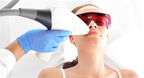 ¿Qué debes saber sobre la depilación láser? 4 datos importantes