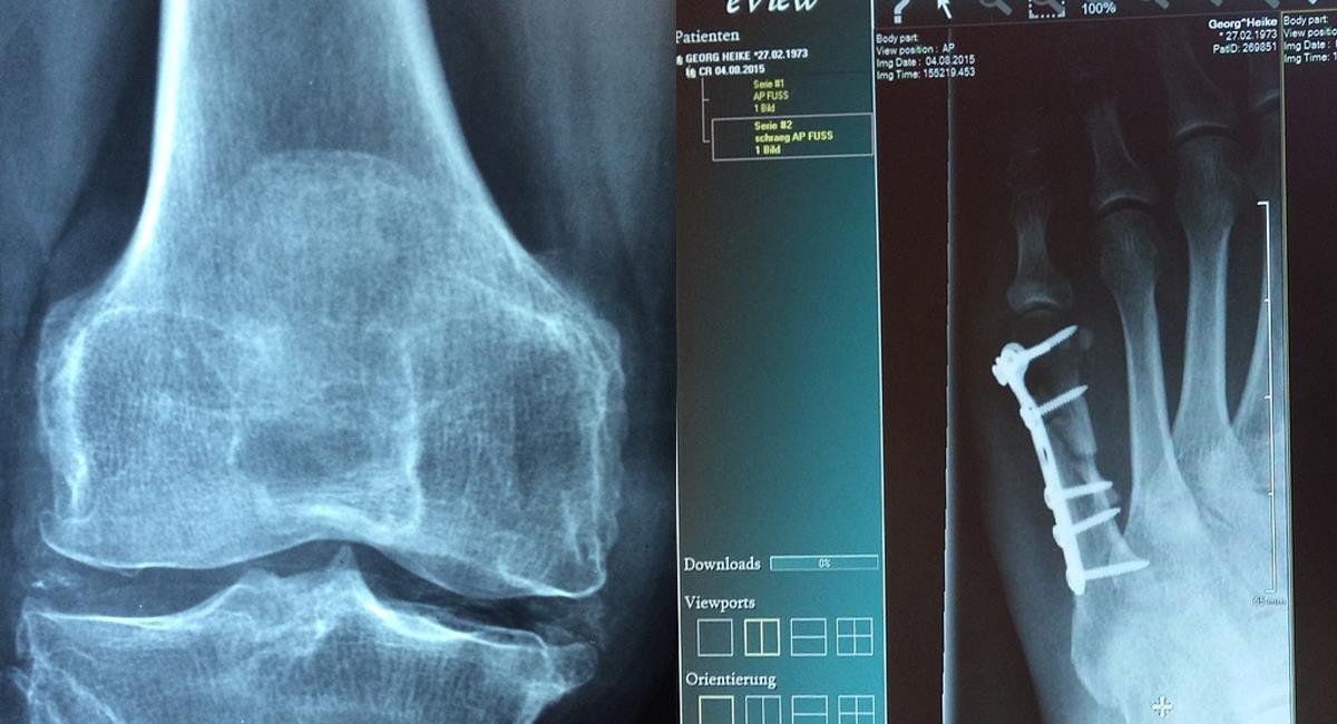 No es un asunto exclusivo de adultos mayores, la osteoporosis está presentándose también en personas jóvenes. Foto: Pixabay