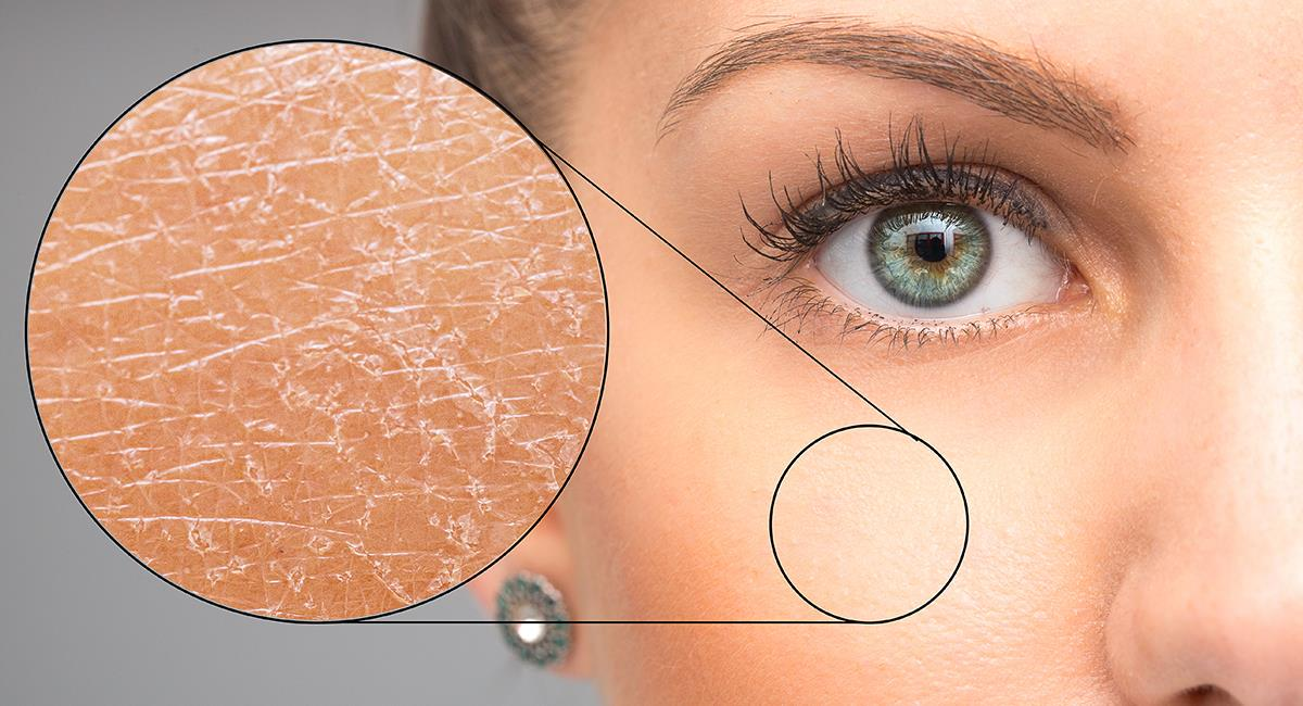 Despídete de la piel seca con estos 5 increíbles trucos caseros. Foto: Shutterstock