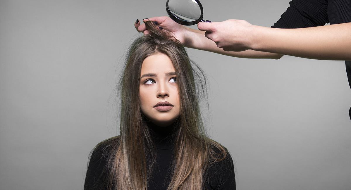 3 increíbles tratamientos caseros para cabello seco y dañado. Foto: Shutterstock