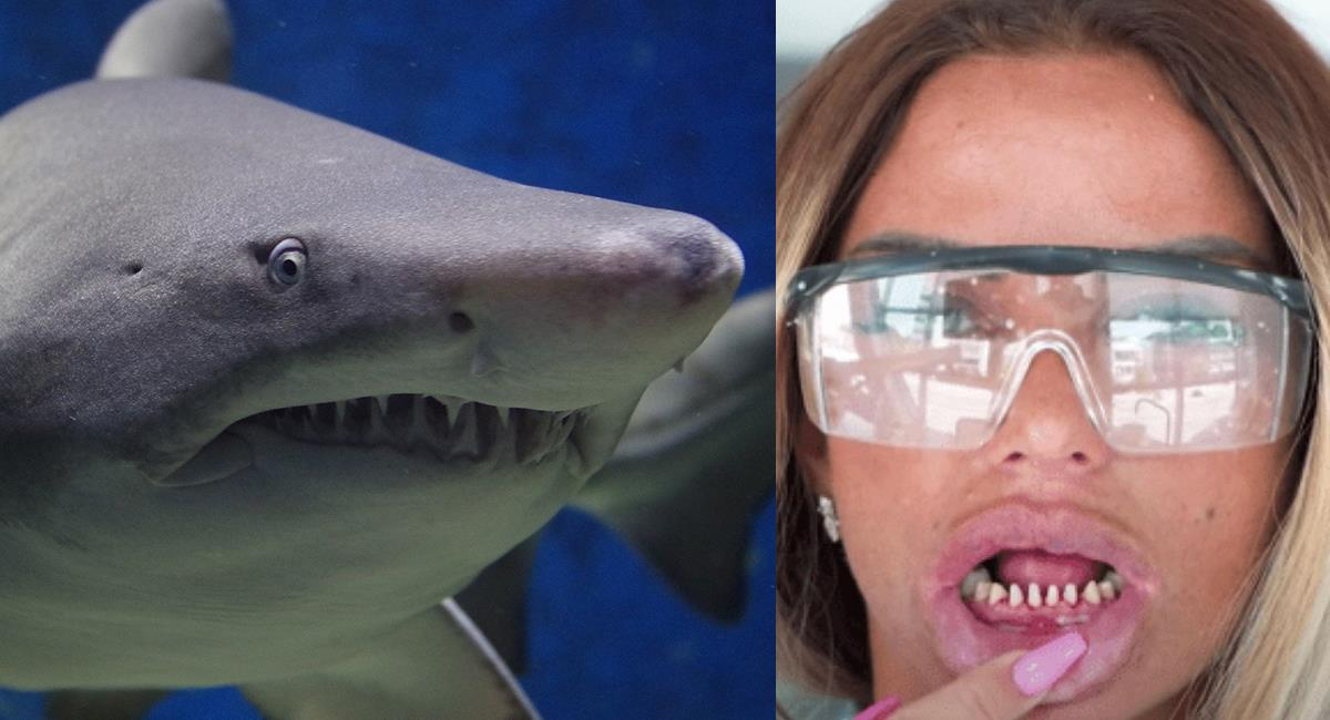Dientes de tiburón: la última tendencia de la moda entre los 'influencers'. Foto: Instagram @dra_nataliapaz