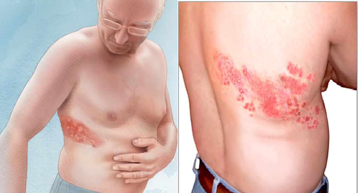 El Herpes Zoster, varicela o culebrilla puede presentarse también en pacientes con Covid-19 como consecuencia de la debilitación inmunológica. Foto: Facebook Dr José Eduardo Mainart Panini