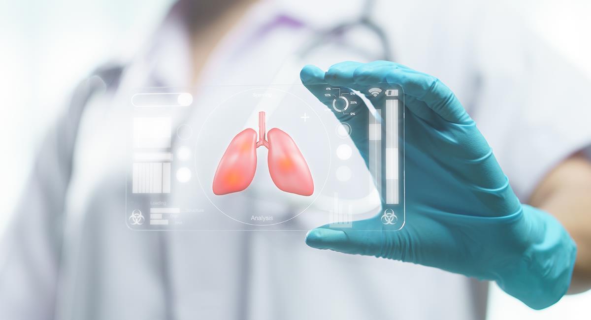 Así se ven los pulmones de las personas que han sufrido de coronavirus. Foto: Shutterstock