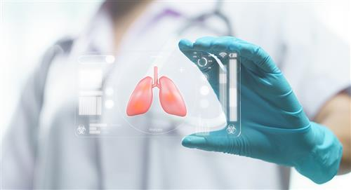 Pulmones: los órganos más afectados en quienes han tenido COVID-19