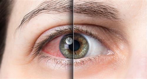 ¿Cómo combatir el síndrome de ojo seco?