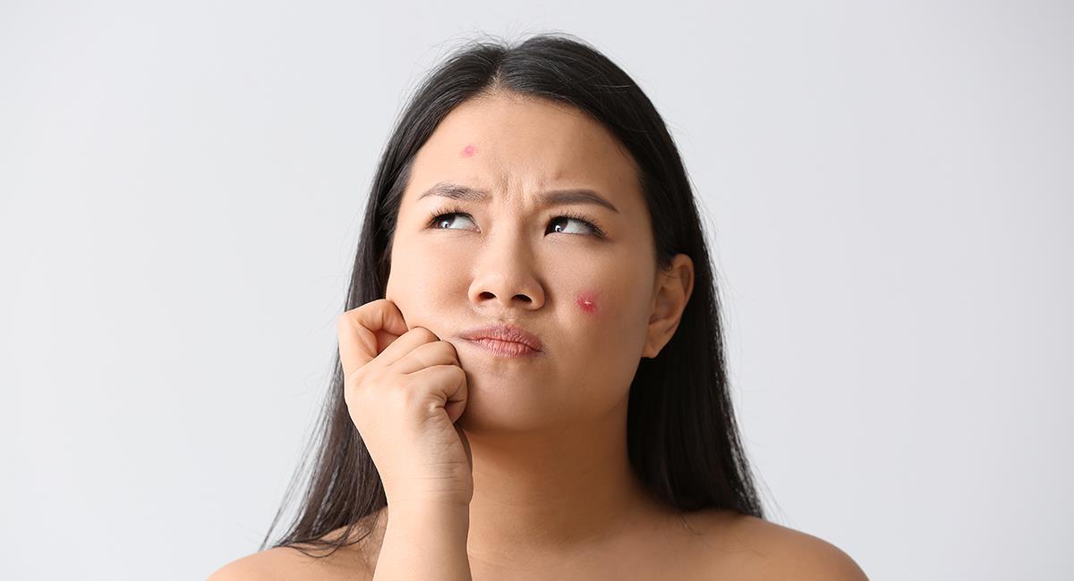 Dinos dónde tienes acné y te diremos qué problema de salud podrías tener. Foto: Shutterstock