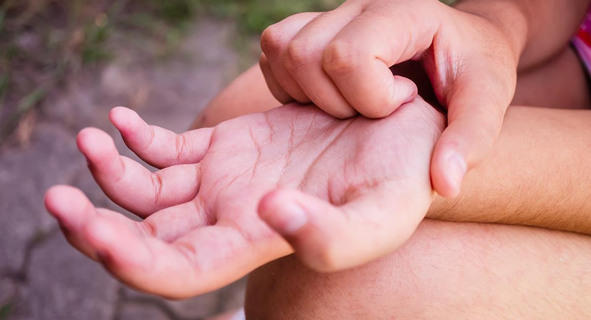Derecha o izquierda: te contamos qué puede pasar si te pican las manos. Foto: Shutterstock