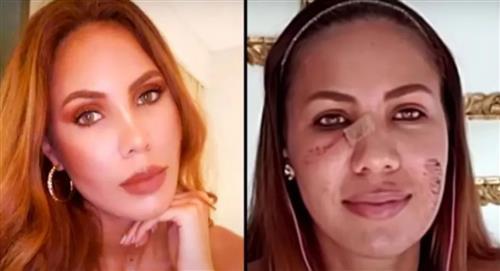 Video: A ex Señorita Bogotá le cayó un dron encima y le cortó el rosto