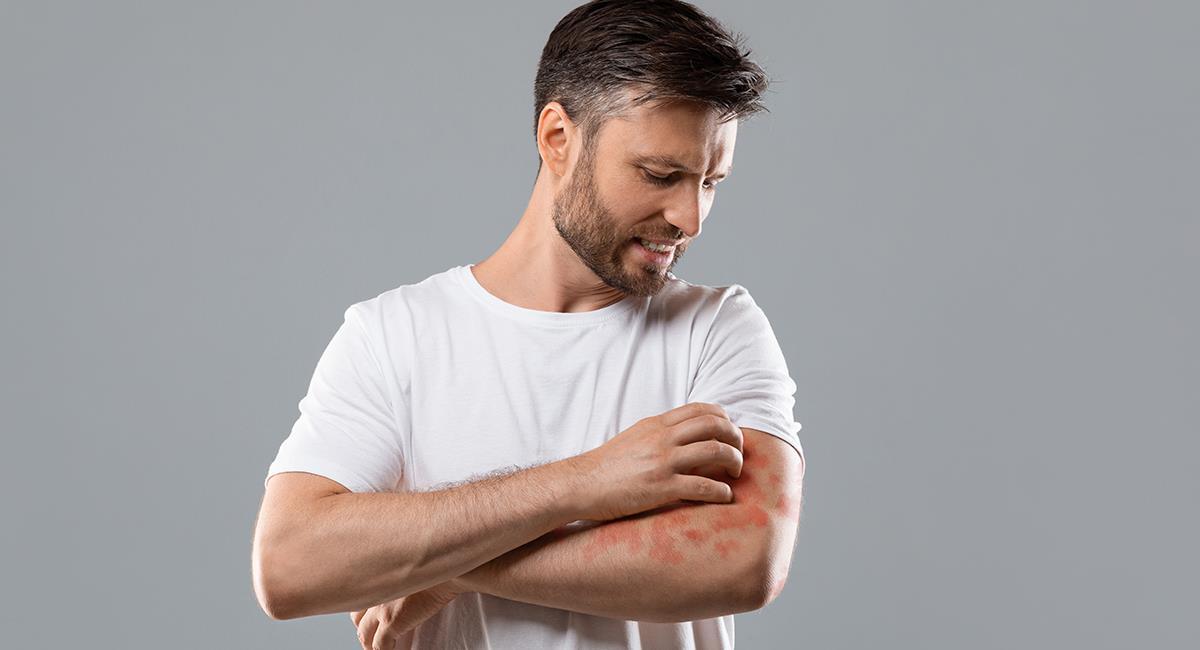 Dermatitis atópica: esto es lo que debes hacer si la padeces. Foto: Shutterstock